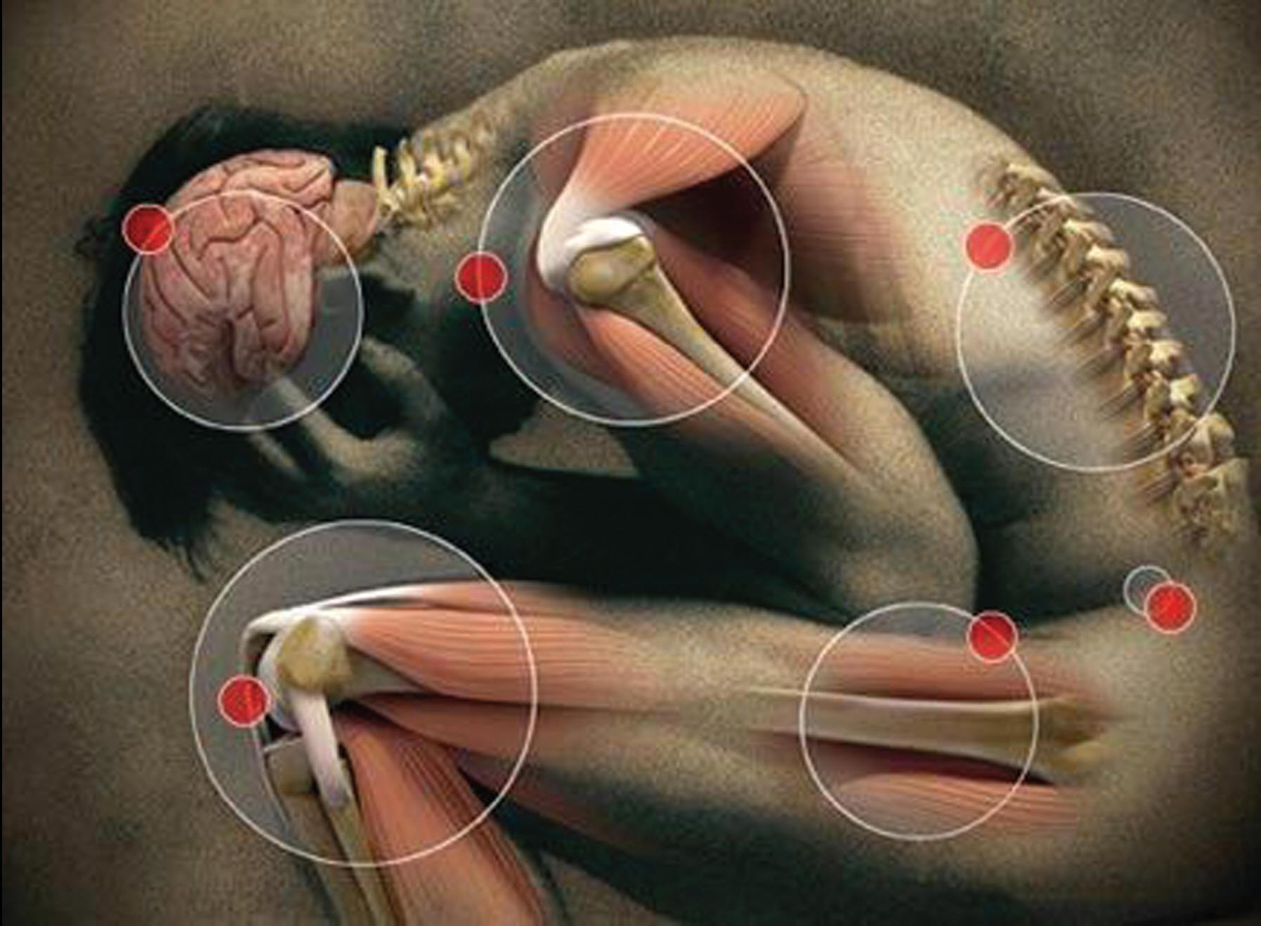слабость боль усталость мышц