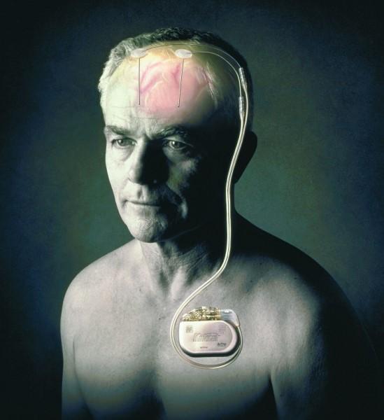 Глубокая стимуляция мозга при болезни Паркинсона