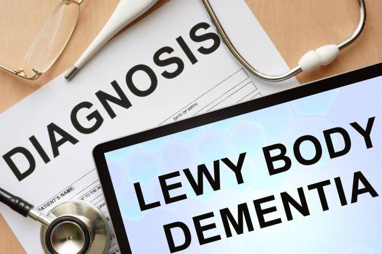 Деменция с тельцами Леви