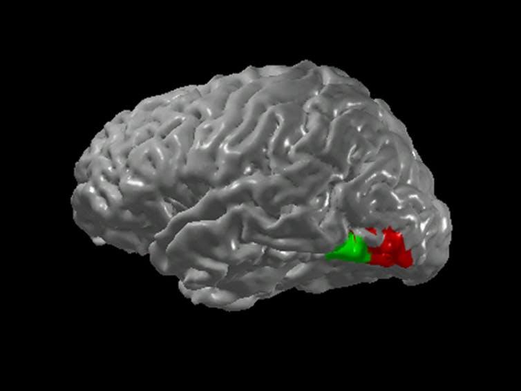 Мозг синестета