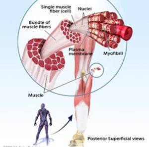 мышечная судорога