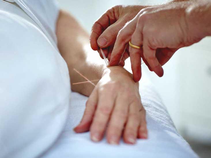 Акупунктура при невропатии