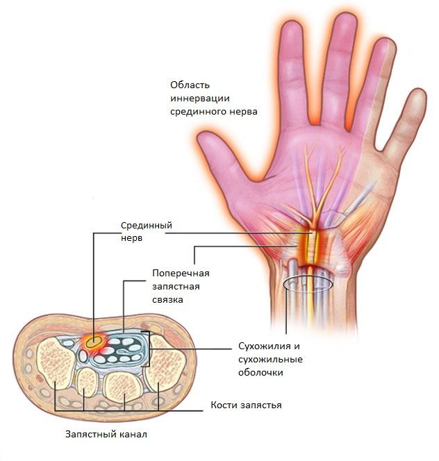 Защемление срединного нерва