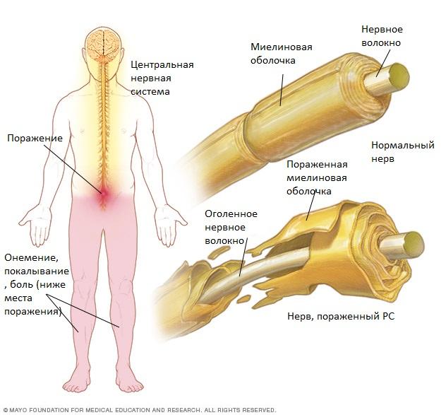 Симптомы и лечение Рассеянного склероза: Что нужно знать ...