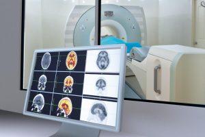 мрт анализ мозга
