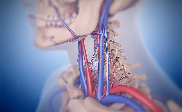 диагностика болей в шее